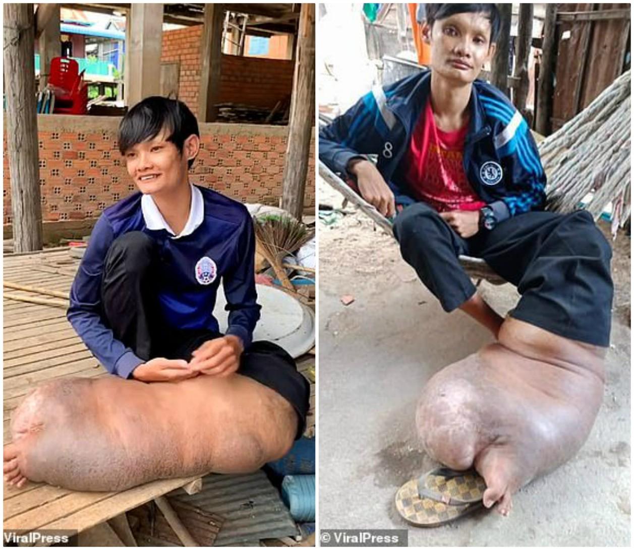 Chỉ một vết muỗi đốt, chân người đàn ông sưng to bằng một con lợn - 1
