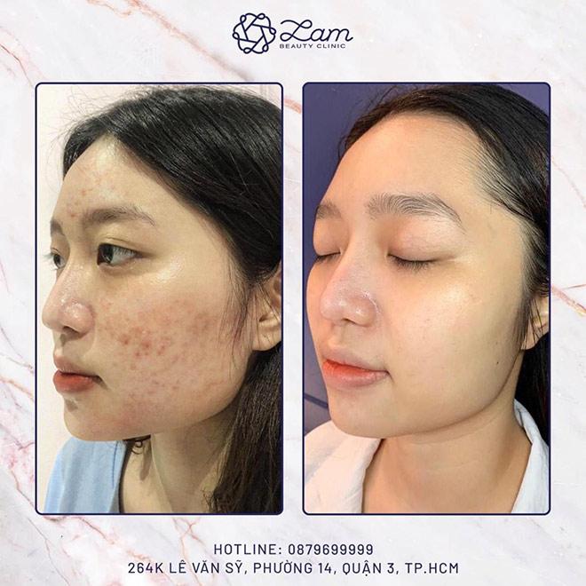 Liệu trình trị mụn an toàn cho sức khỏe tại Lam Beauty Clinic - 1