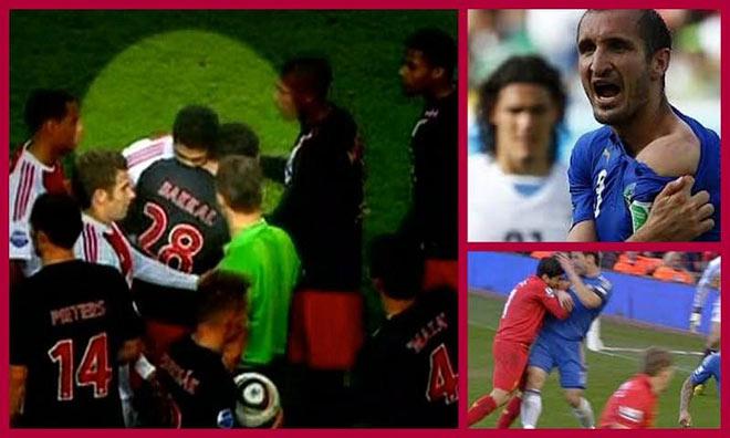 """SAO bóng đá Pháp hóa """"Suarez 2.0"""" cắn đối thủ, sắp có án phạt nặng - 2"""