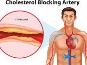 Tin tức sức khỏe - Bảo bối giúp giảm cholesterol trong máu cực hiệu quả của người Nhật