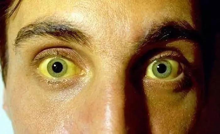 Bất kể là nam hay nữ, nếu thấy 3 dấu hiệu này trên mặt, có thể gan bạn đang bị xơ cứng - 1