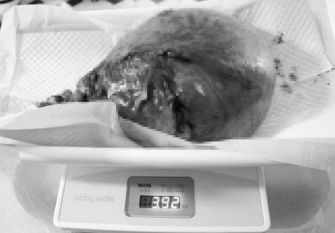 Hoảng hồn với những phụ nữ đau bụng quằn quại vào viện mới biết mang khối u khủng - 1