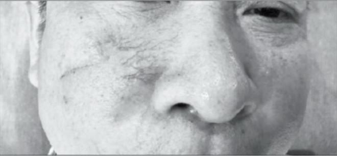 Giãn mao mạch ảnh hưởng thẩm mỹ của da - 1