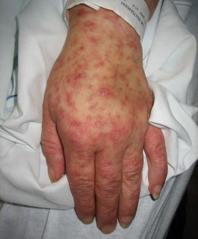 Mỹ: COVID-19 đang 'nóng sùng sục', lại phát hiện thêm virus cực độc - 1