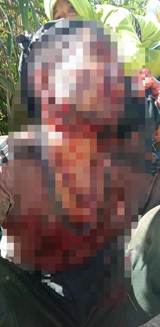 Một người dân ở Quảng Nam bị gấu rừng tấn công kinh hoàng - 1