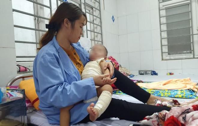 Đắp thuốc chữa bỏng của thầy lang, bé trai 13 tháng tuổi bị hoại tử da - 1