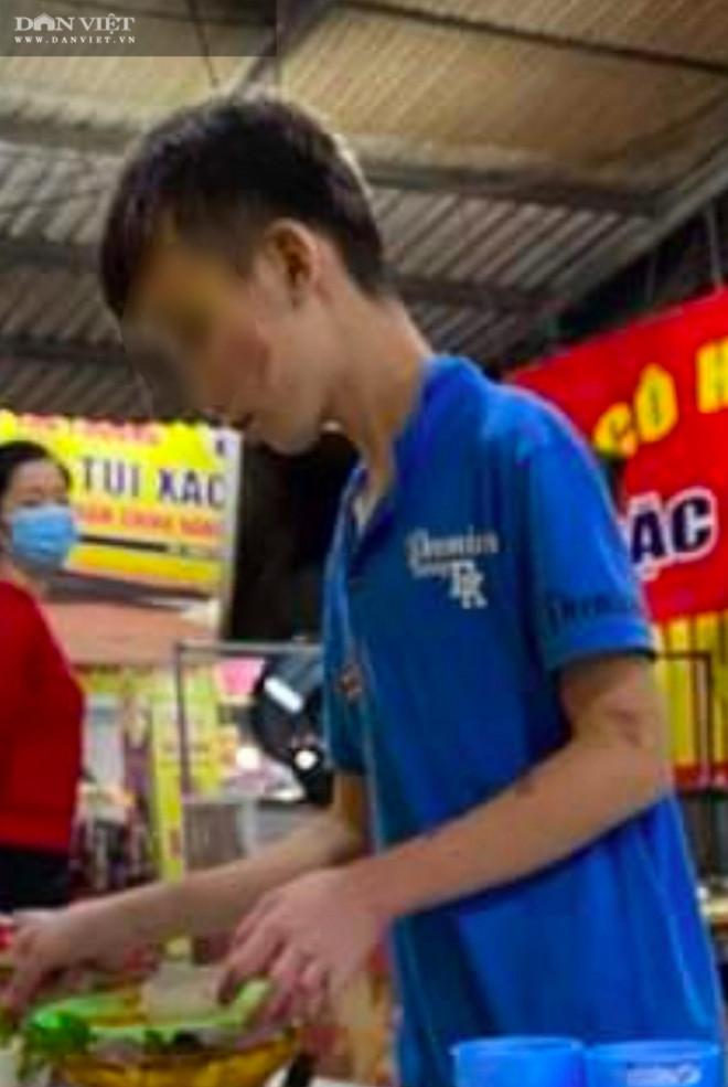 """Bắc Ninh: Cậu bé giúp việc quán bánh xèo bị hành hung, """"tra tấn như thời Trung cổ""""! - 3"""