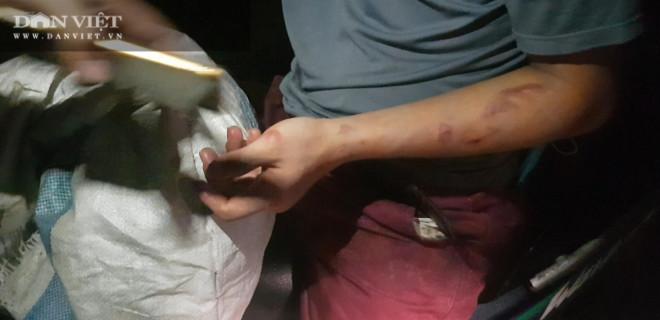 """Bắc Ninh: Cậu bé giúp việc quán bánh xèo bị hành hung, """"tra tấn như thời Trung cổ""""! - 6"""