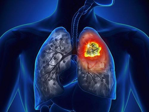 Cảnh báo 5 dấu hiệu không ngờ đến của ung thư phổi - 1
