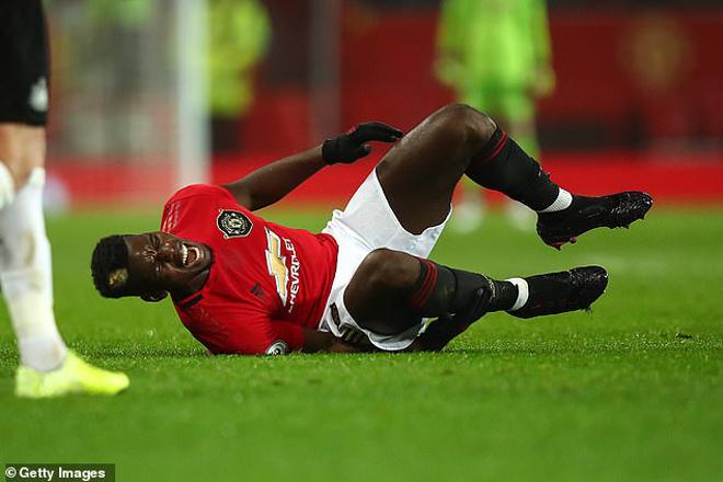 """MU """"tái mặt"""" vì Pogba chấn thương nặng: Có kịp trở lại đấu PSG? - 1"""