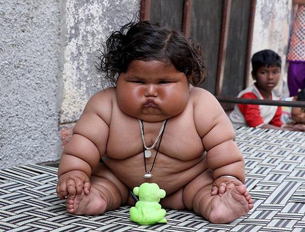 """Cuộc sống của """"bé gái béo nhất thế giới"""" gây ngỡ ngàng 3 năm trước giờ ra sao? - 1"""