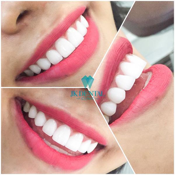 Giải đáp các câu hỏi về tẩy trắng răng tại Phòng khám nha khoa thẩm mỹ JK Dental - 1
