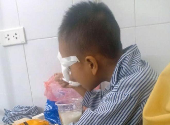 Học sinh lớp 1 bị bạn ném bi sắt vào mắt gây tổn thương nặng - 1